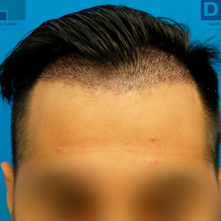 10-days-post-op-fue-hair-transplant-surgery-2593-grafts
