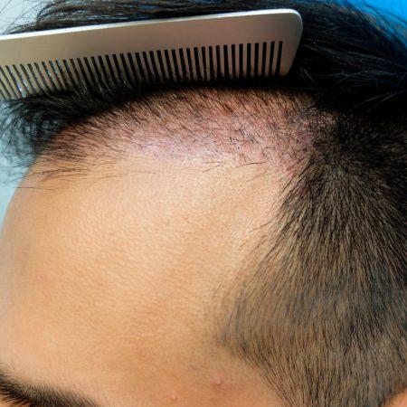 31-days-post-op-fue-hair-restoration-left-temple