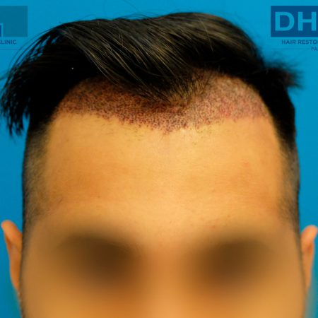 day-3-post-hair-transplant-surgery-FUE-2593-grafts-hair-line-front-view